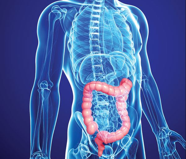 Colon Cancer Rising in People Under 50 Colon Cancer Rising in People Under 50 new images