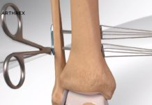 The Tightrope device is an implant system. Photo via Arthrex.