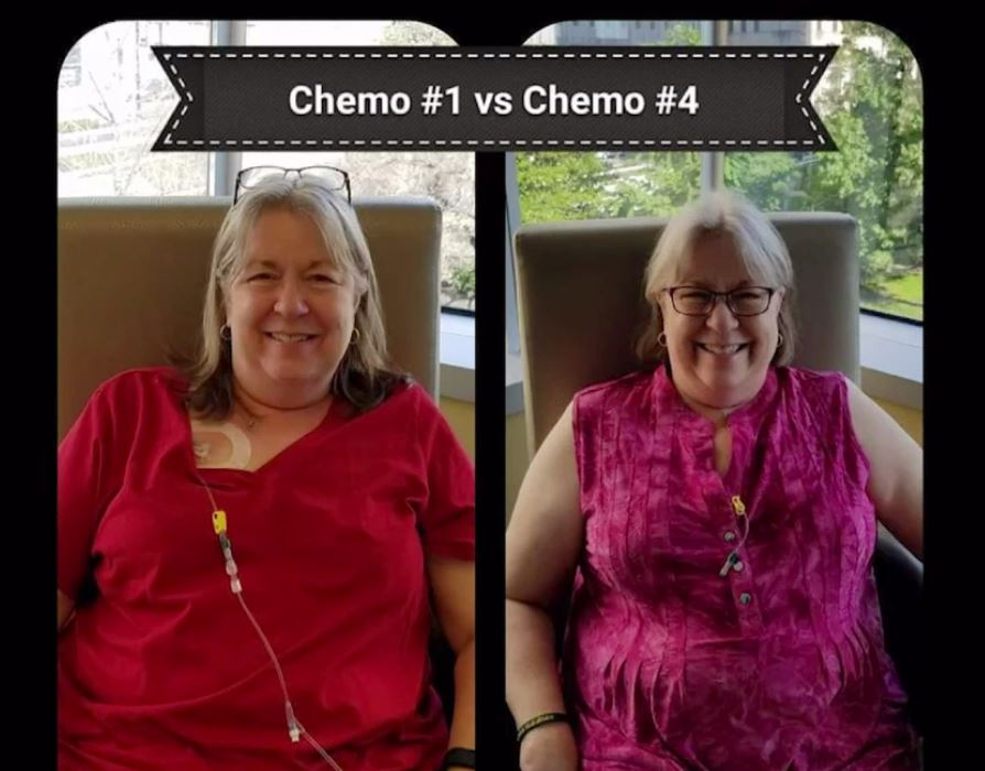 Hard to tell the difference between Terri Buckler's first to her last chemotherapy. (Credit Ivanhoe Newswire)