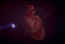 Pacemaker creates a normal heart rhythm. (Credit: Ivanhoe Newswire)