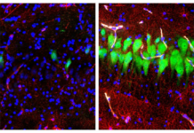 "This combination of images provided by the Yale School of Medicine in April 2019 shows stained microscope photos of neurons, green; astrocytes, red, and cell nuclei, blue, from a pig brain left untreated for 10 hours after death, left, and another with a specially designed blood substitute pumped through it. By medical standards ""this is not a living brain,"" said Nenad Sestan of the Yale School of Medicine, one of the researchers reporting the results Wednesday, April 17, 2019, in the journal Nature. But the work revealed a surprising degree of resilience within a brain that has lost its supply of blood and oxygen, he said. (Stefano G. Daniele, Zvonimir Vrselja/Sestan Laboratory/Yale School of Medicine)"