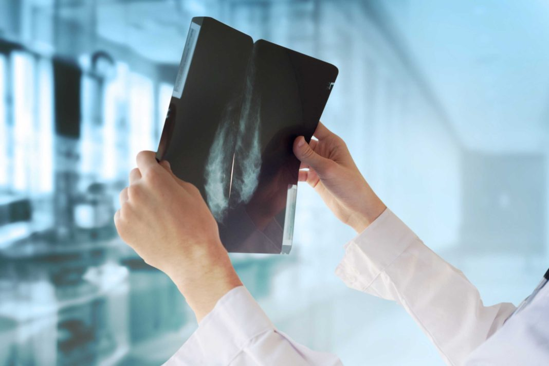 Google says it has developed an artificial intelligence system that can detect the presence of breast cancer more accurately than doctors. (Credit: Shutterstock)